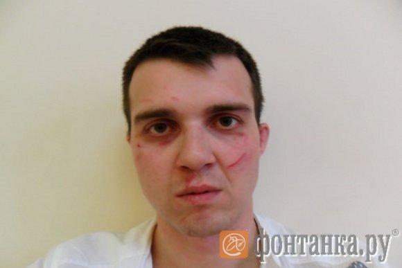 Побитое лицо у девушки фото