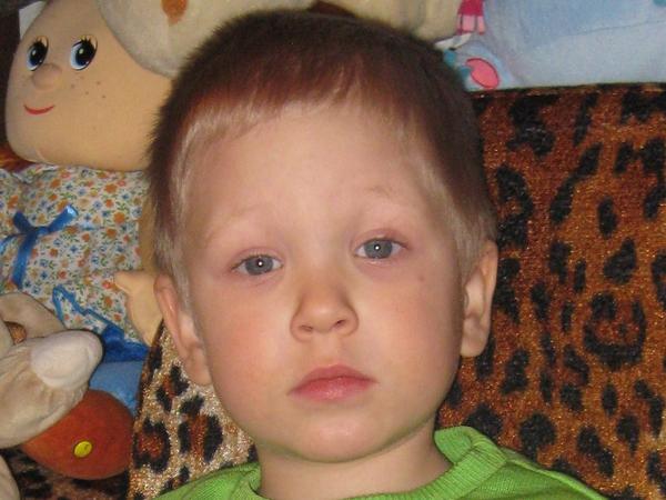 Трёхлетнему Паше нужна помощь преодолеть диабет