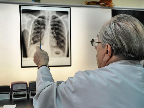 Медики с туберкулезом - по пять за год