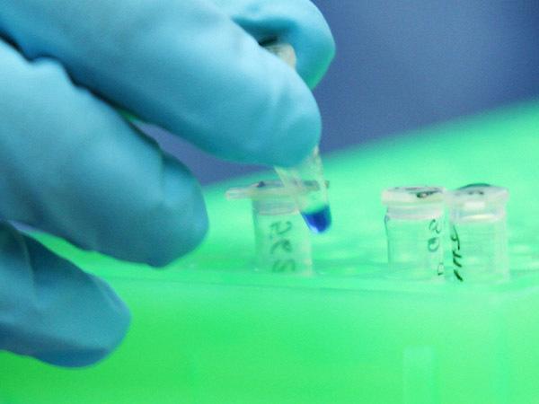 Взломать ДНК за 20 часов. Как разработка петербургских биоинформатиков поможет россиянам найти доноров костного мозга