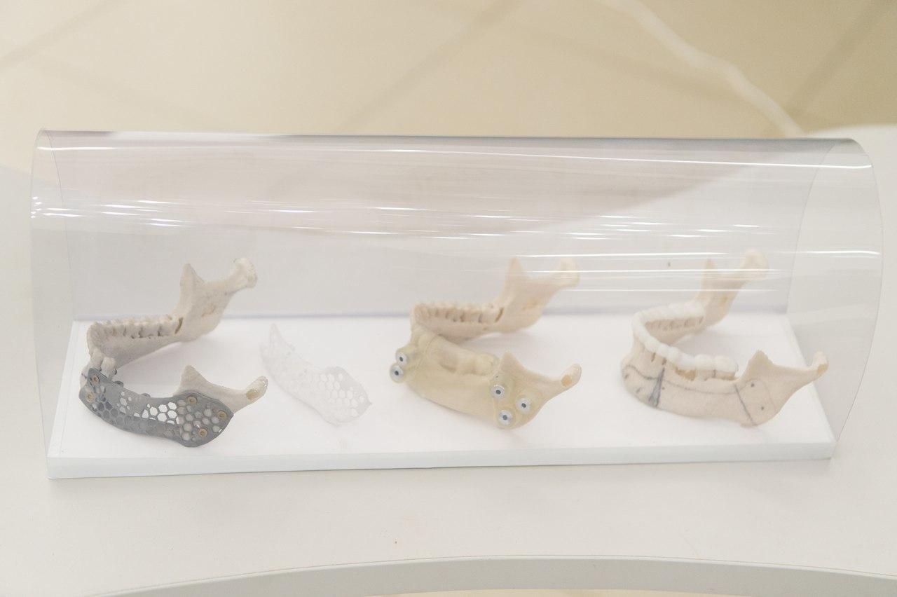 Протез нижней челюсти, напечатанный в СПбПУ и  спроектированный в соответствии с анатомическими особенностями пациента